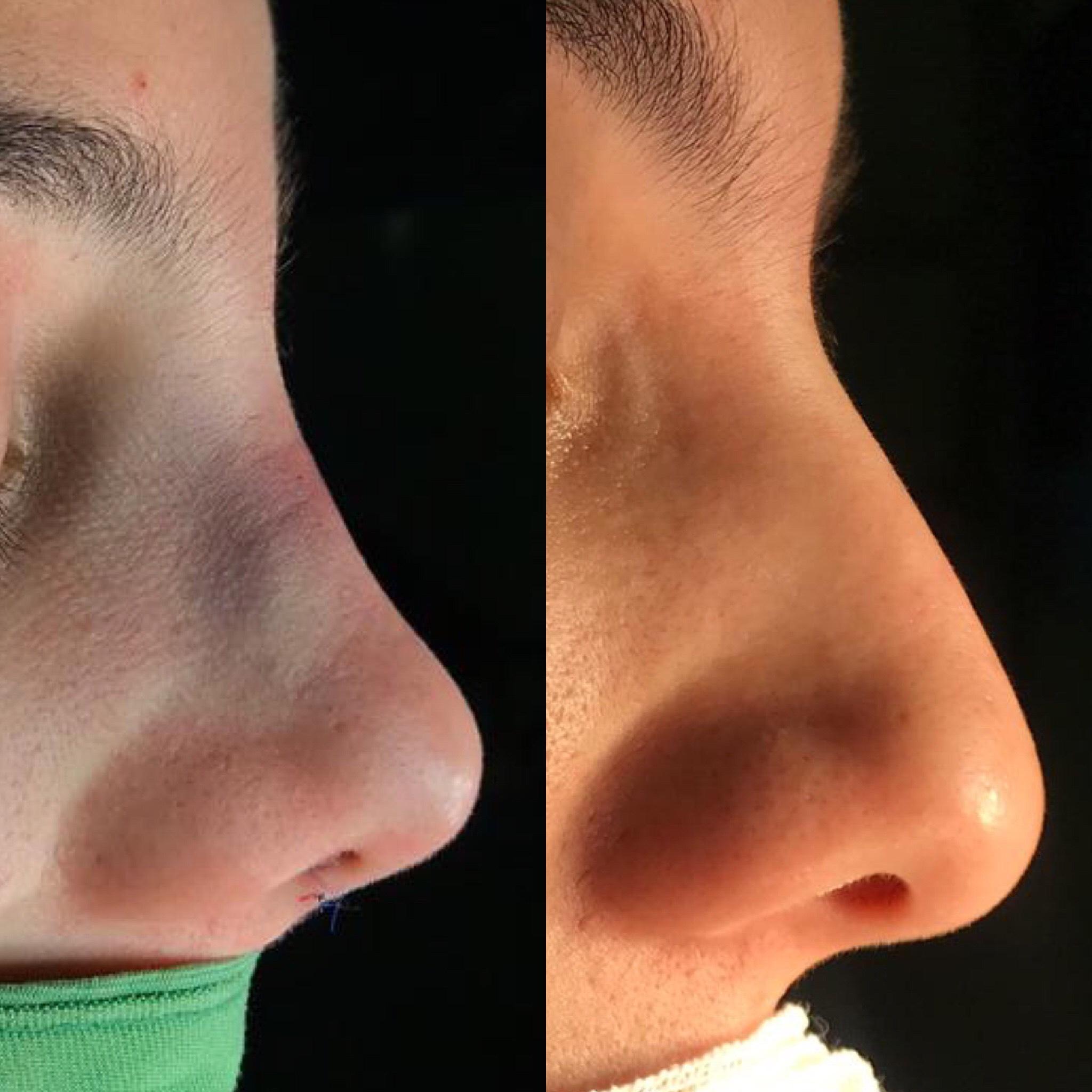 رینوپلاستی- بینی کوتاه